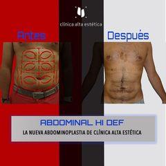 Abdominoplastia - Alta Estética