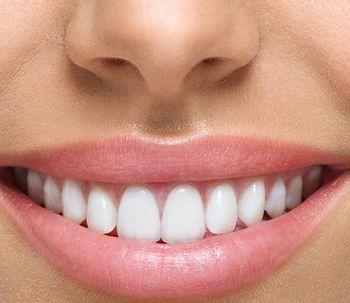 Le mode odontoiatriche