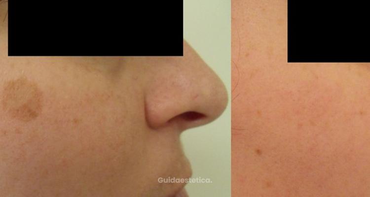 Macchie della pelle. Cause, prevenzione e rimedi