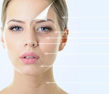 Il laser CO2 pulsato, la cura agli inestetismi della pelle