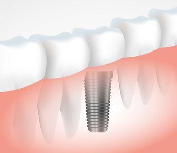 Denti nuovi grazie all'implantologia dentale