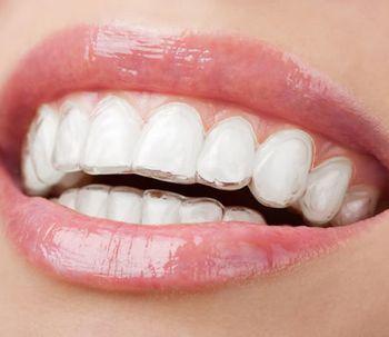 3 tipi di apparecchi dentali invisibili