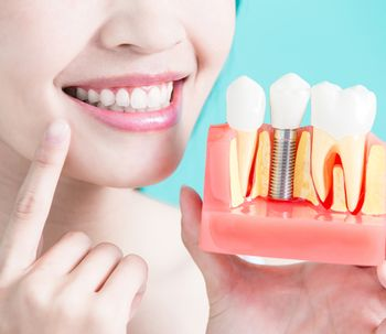 Quale protesi dentaria scegliere?