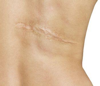Come prendersi cura di una cicatrice