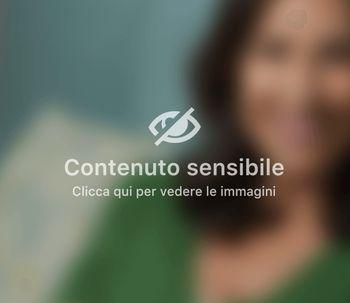 Soft Silohuette: donare tonicità al viso senza bisturi