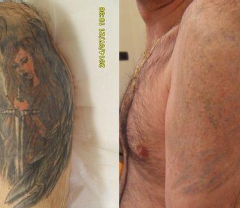 Rimuovere i tatuaggi è così pericoloso?