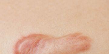 Cicatrici e cheloidi: un problema globale per giovani e meno giovani