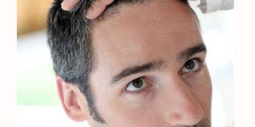 Si potranno riprodurre i capelli grazie alle cellule capillari autogene?
