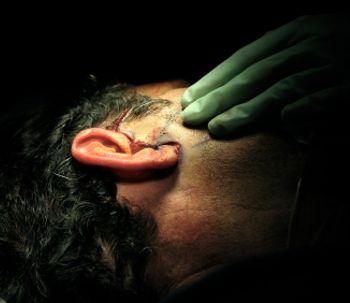 L'intervento di otoplastica