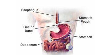 Il bendaggio gastrico regolabile: rischi e vantaggi