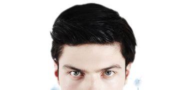 Trapianto Capelli - L'autotrapianto di capelli non basta
