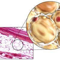 Adipocitolisi cavitazionale