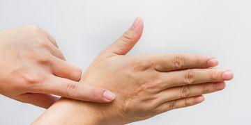 Come trattare cheloidi e cicatrici ipertrofiche