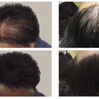 Alopecia e Dintorni: studio personalizzato sul trattamento
