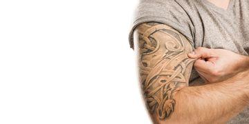 Rimozione tatuaggi: laser o chirurgia?