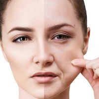 Lifting del viso non chirurgico