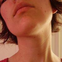 Chirurgia del lobo auricolare (correzione dell'orecchio bifido)