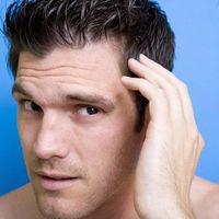 L'autotrapianto dei capelli