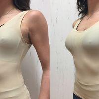 La simulazione delle protesi al seno con sizers