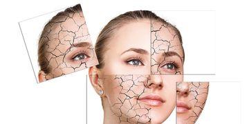 Skinbooster; il trattamento che mette il turbo alle cellule