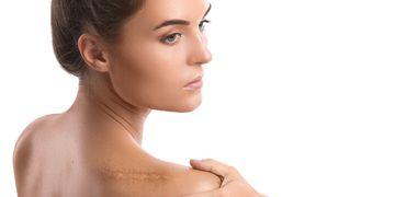 Cellule madre o PRP, trattamenti efficaci per le cicatrici