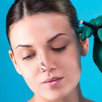 Rinoplastica medica: migliorare il naso senza chirurgia è possibile