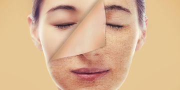 Il peeling: la base per una reidratazione profonda