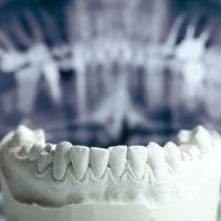 Implantologia mini invasiva computer guidata ed alta estetica dentale