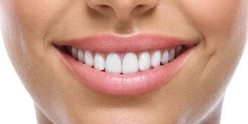Sbiancamento dentale: le cose da sapere
