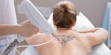 Tutto ciò che devo sapere per rimuovere un tatuaggio