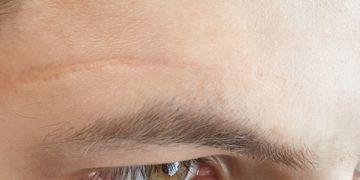 Chirurgia per coprire le cicatrici