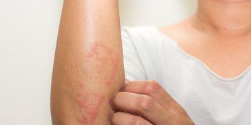 Dermatiti, tutte le cause e i rimedi