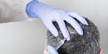 PRP e Medicina Rigenerativa contro la caduta dei capelli