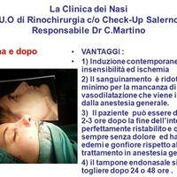 Rinoplastica: tecnica ibrida in anestesia locale