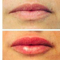 Filler labbra, le domande più frequenti