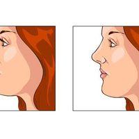 Consigli e riflessioni sulla rinoplastica: la parola all'esperto