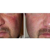 Il trattamento dei capillari del viso