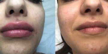 Filler labbra: quando i riassorbibili non soddisfano