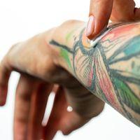 La rimozione dei tatuaggi
