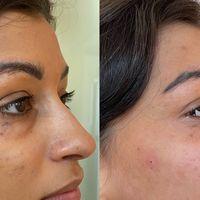 Acido ialuronico: il filler specifico per il contorno occhi