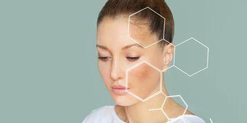 Perché si formano le macchie sulla pelle?