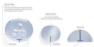 Innovazione in mastoplastica additiva: le protesi anatomiche True Fixation®