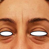 Quando le occhiaie scure diventano un problema