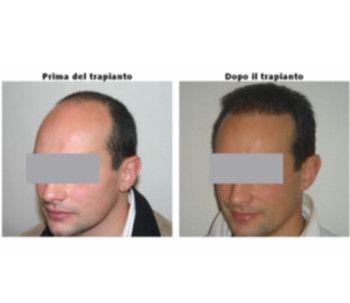 quali-innovazioni-in-chirurgia-estetica-chiediamolo-al-dott-caboni-2-ai2.jpg