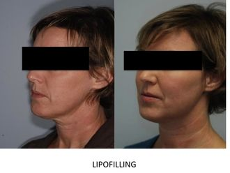 Lipofilling-748521