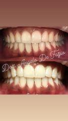 Sbiancamento dentale - Dr. Angelo De Fazio