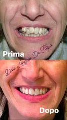Trattamento ortodontico Invisalign - Dr. Angelo De Fazio