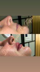 Filler labbra - Dr. Angelo De Fazio