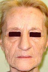 Lipofilling viso pre operatorio