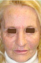 Lipofilling viso post-operatorio